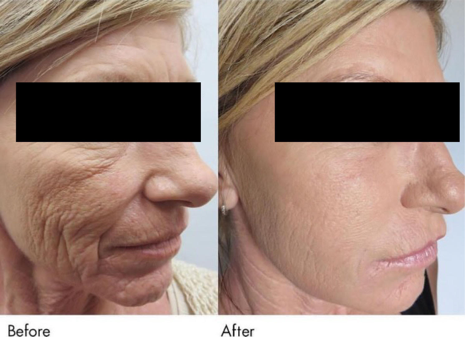 Natural Plasma Gel Bio-Fillers