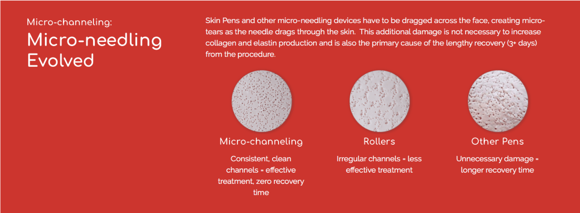 comparision with micro needling derma rollers