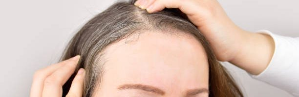 Reverse Gray or White Hair and Hair Growth with Polygonum Multiflorum